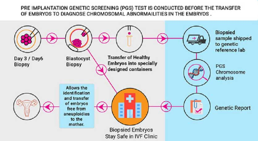 why-pre-implantation-genetic-screening-of-embryos-is-recommended-after-ivf-failure